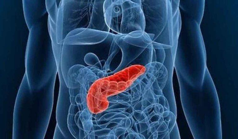 cancer du pancréas